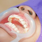 How to become a cosmetic dentist